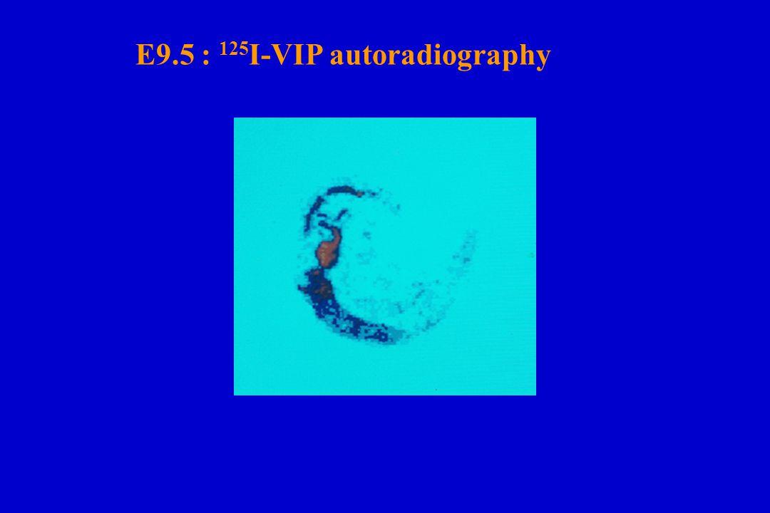 E9.5 : 125 I-VIP autoradiography