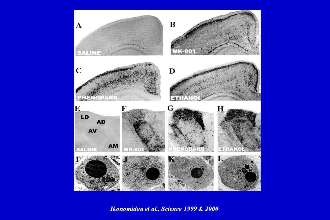 Ikonomidou et al., Science 1999 & 2000
