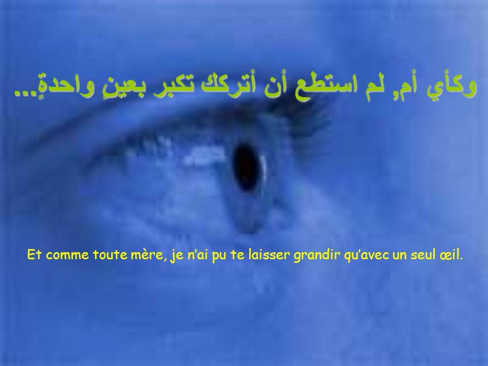 هل تعلم... لقد تعرضتَ لحادثٍ عندما كنت صغيراً وقد فقدتَ عينك. Sais tu, qu'étant enfant tu as eu un accident et tu as perdu un œil.