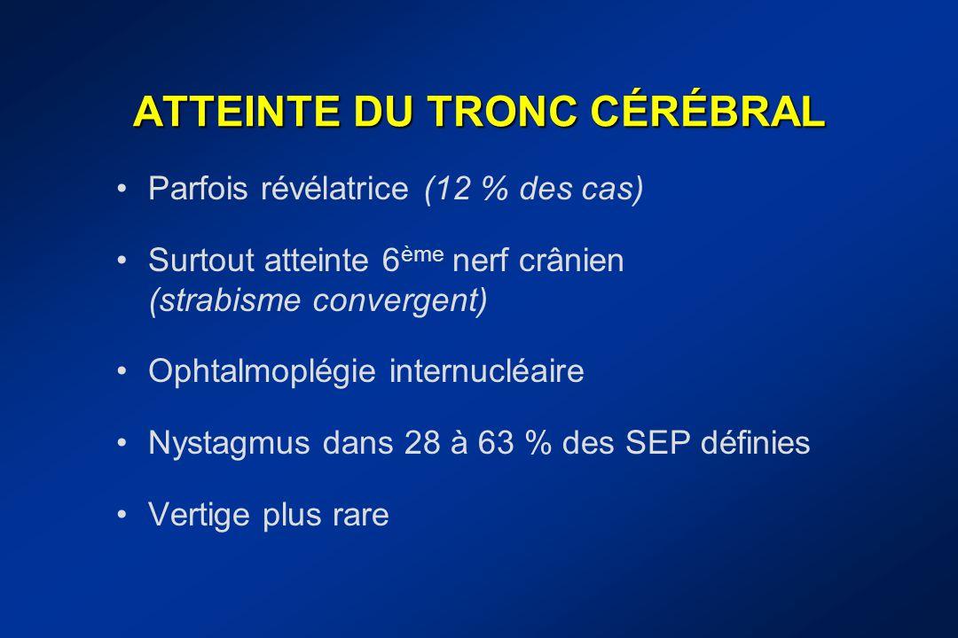 ATTEINTE DU TRONC CÉRÉBRAL Parfois révélatrice (12 % des cas) Surtout atteinte 6 ème nerf crânien (strabisme convergent) Ophtalmoplégie internucléaire