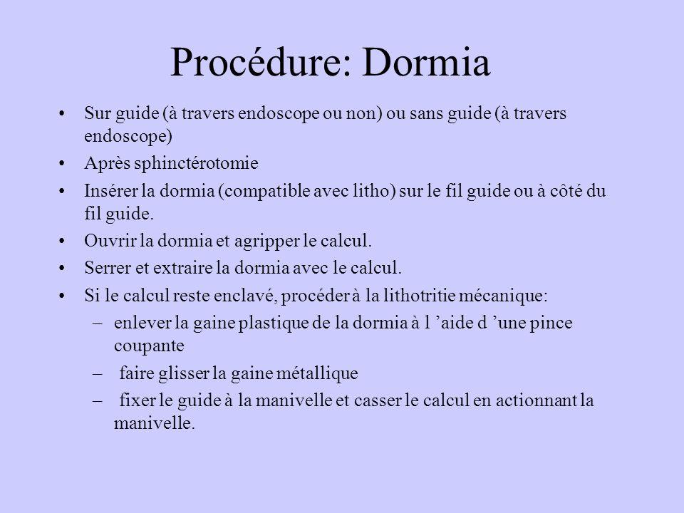 Procédure: Dormia Sur guide (à travers endoscope ou non) ou sans guide (à travers endoscope) Après sphinctérotomie Insérer la dormia (compatible avec