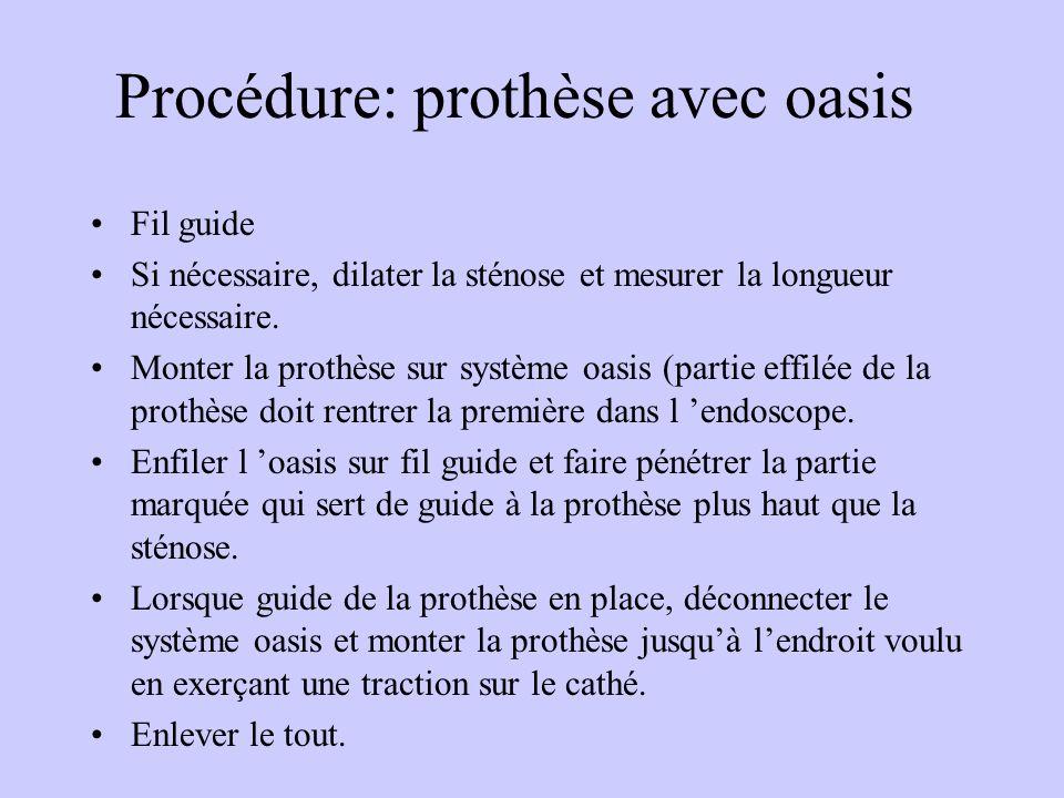Procédure: prothèse avec oasis Fil guide Si nécessaire, dilater la sténose et mesurer la longueur nécessaire. Monter la prothèse sur système oasis (pa