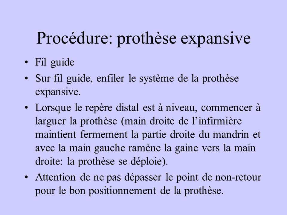Procédure: prothèse expansive Fil guide Sur fil guide, enfiler le système de la prothèse expansive. Lorsque le repère distal est à niveau, commencer à