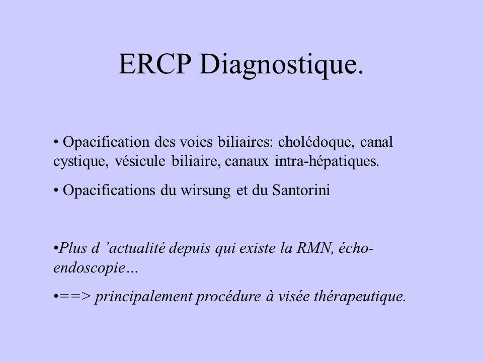 ERCP Diagnostique. Opacification des voies biliaires: cholédoque, canal cystique, vésicule biliaire, canaux intra-hépatiques. Opacifications du wirsun