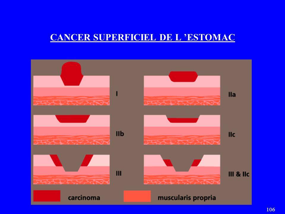 106 CANCER SUPERFICIEL DE L 'ESTOMAC