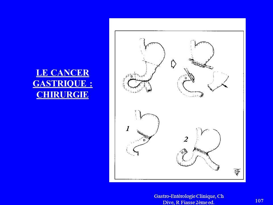 Gastro-Entérologie Clinique, Ch Dive, R Fiasse 2ème ed. 107 LE CANCER GASTRIQUE : CHIRURGIE