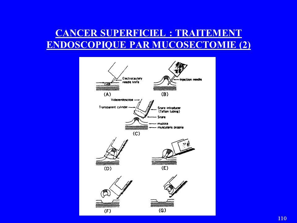 110 CANCER SUPERFICIEL : TRAITEMENT ENDOSCOPIQUE PAR MUCOSECTOMIE (2)