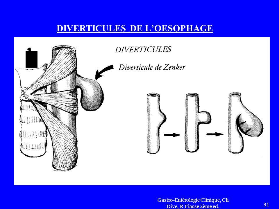 Gastro-Entérologie Clinique, Ch Dive, R Fiasse 2ème ed. 31 DIVERTICULES DE L'OESOPHAGE