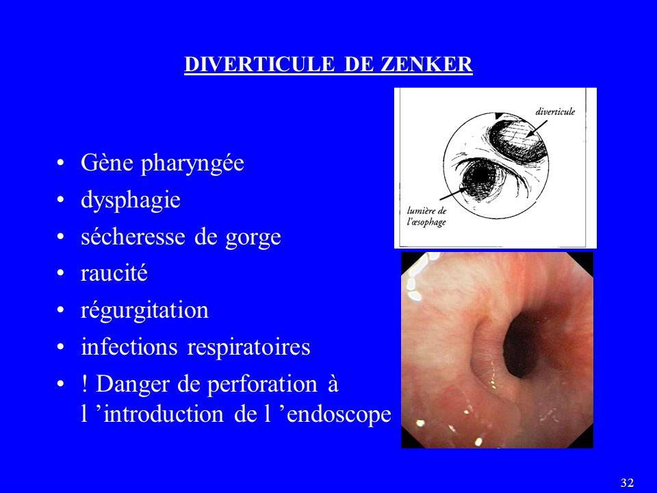 32 DIVERTICULE DE ZENKER Gène pharyngée dysphagie sécheresse de gorge raucité régurgitation infections respiratoires ! Danger de perforation à l 'intr