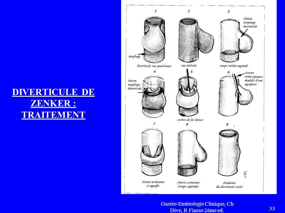 Gastro-Entérologie Clinique, Ch Dive, R Fiasse 2ème ed. 33 DIVERTICULE DE ZENKER : TRAITEMENT