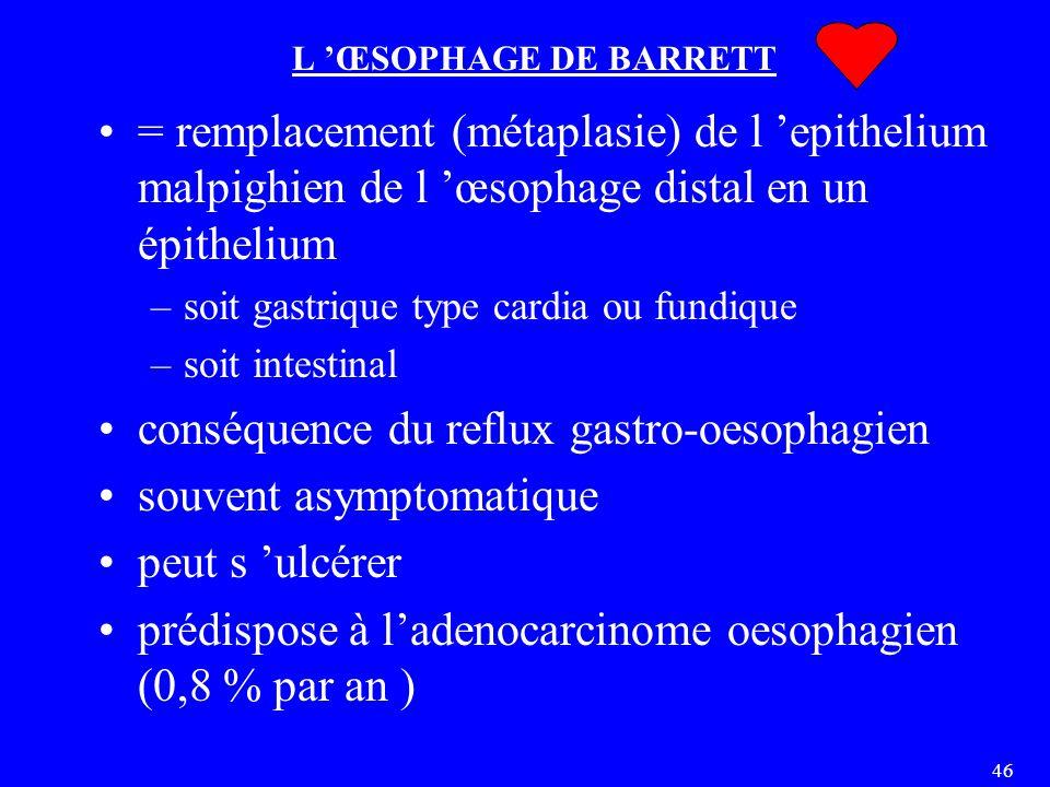 46 L 'ŒSOPHAGE DE BARRETT = remplacement (métaplasie) de l 'epithelium malpighien de l 'œsophage distal en un épithelium –soit gastrique type cardia ou fundique –soit intestinal conséquence du reflux gastro-oesophagien souvent asymptomatique peut s 'ulcérer prédispose à l'adenocarcinome oesophagien (0,8 % par an )