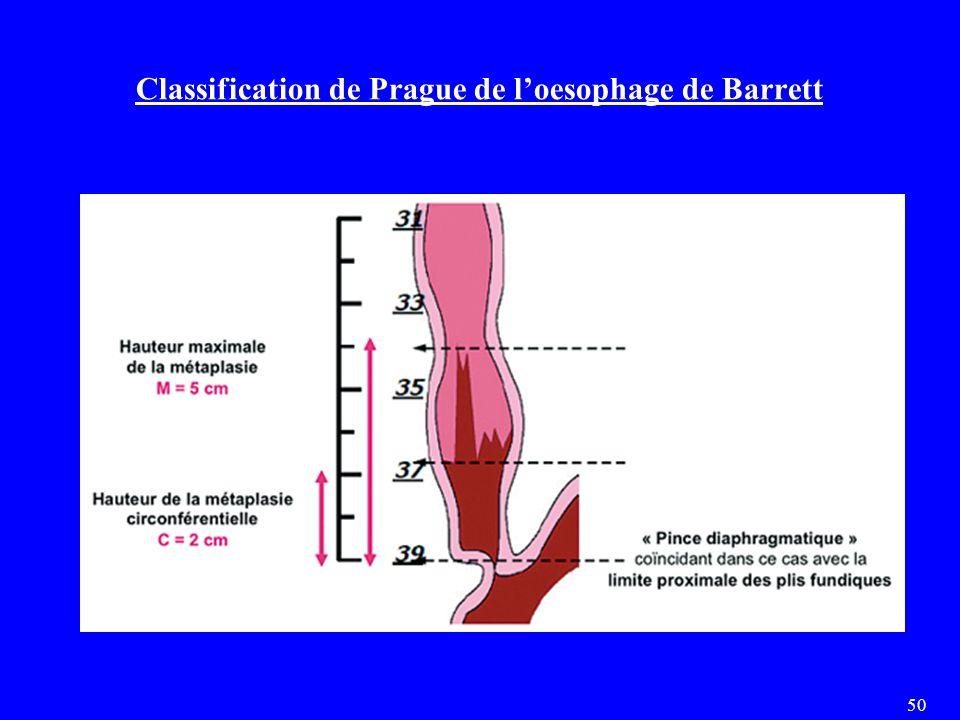 Classification de Prague de l'oesophage de Barrett 50