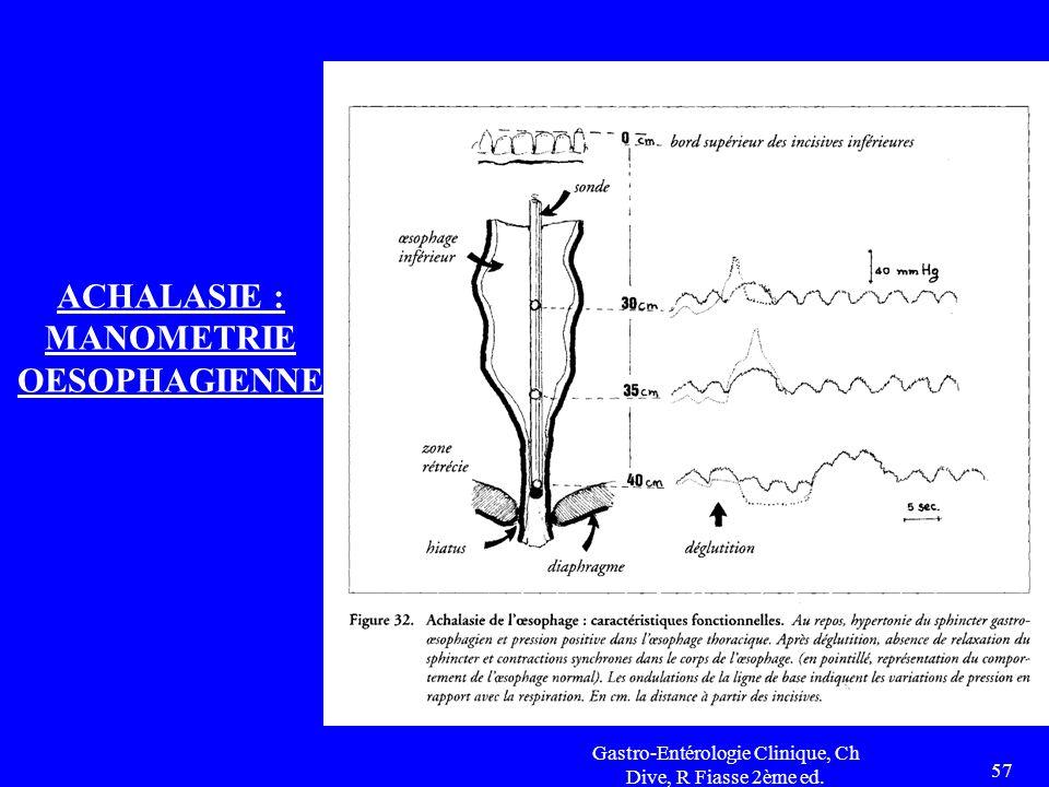 Gastro-Entérologie Clinique, Ch Dive, R Fiasse 2ème ed. 57 ACHALASIE : MANOMETRIE OESOPHAGIENNE