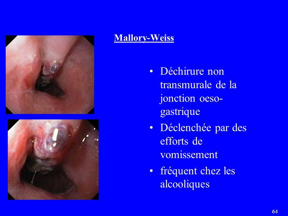 64 Mallory-Weiss Déchirure non transmurale de la jonction oeso- gastrique Déclenchée par des efforts de vomissement fréquent chez les alcooliques