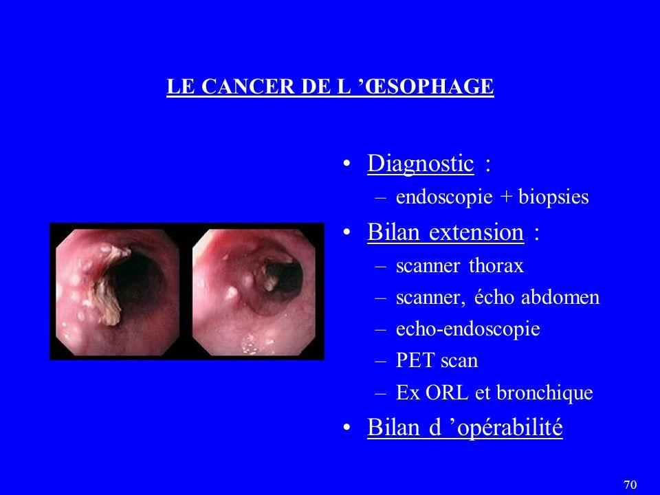 70 LE CANCER DE L 'ŒSOPHAGE Diagnostic : –endoscopie + biopsies Bilan extension : –scanner thorax –scanner, écho abdomen –echo-endoscopie –PET scan –Ex ORL et bronchique Bilan d 'opérabilité