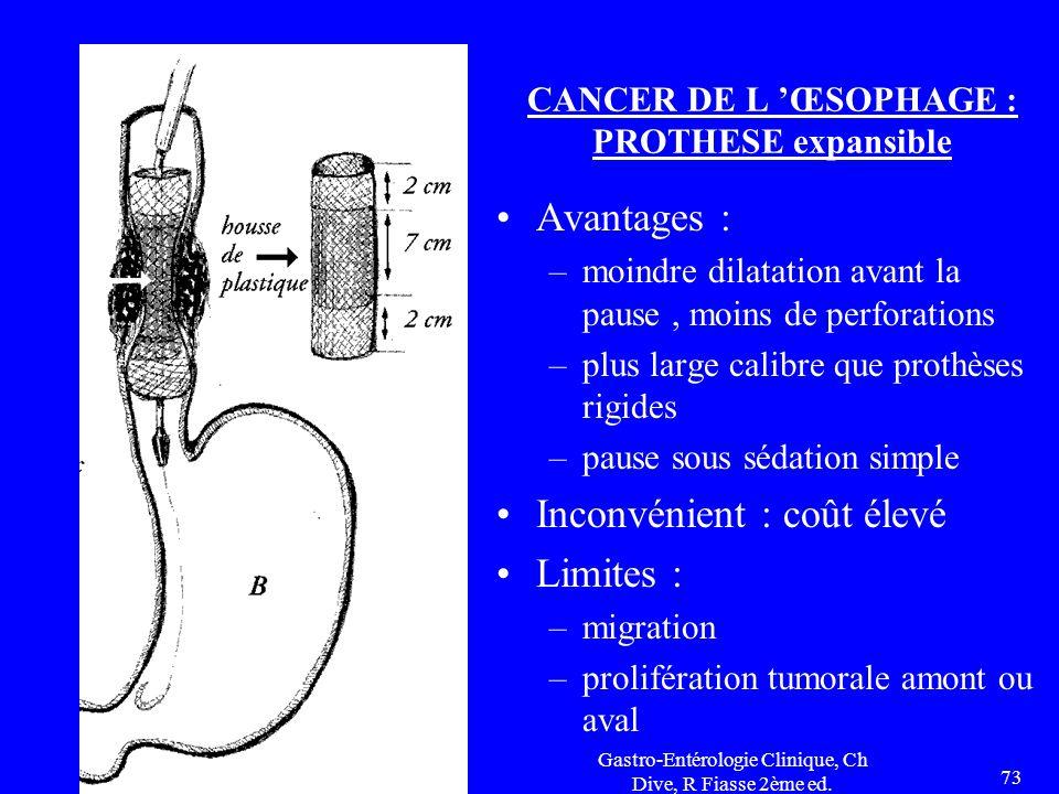 Gastro-Entérologie Clinique, Ch Dive, R Fiasse 2ème ed. 73 CANCER DE L 'ŒSOPHAGE : PROTHESE expansible Avantages : –moindre dilatation avant la pause,