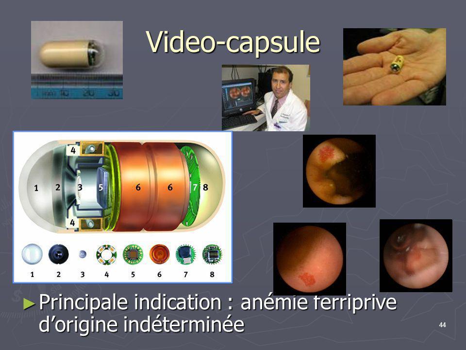 44 Video-capsule ► Principale indication : anémie ferriprive d'origine indéterminée