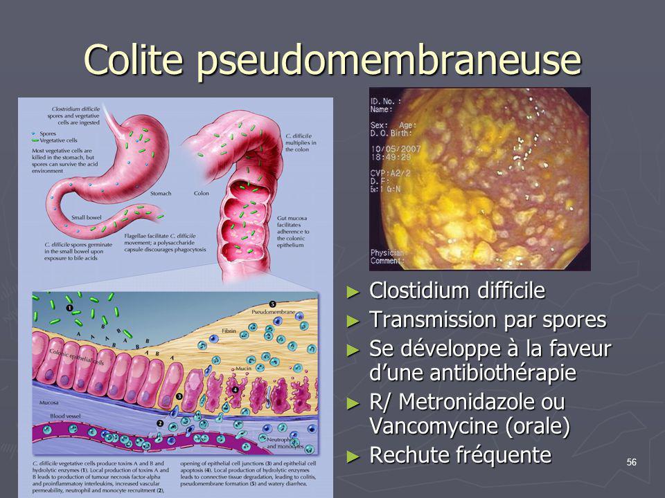 56 Colite pseudomembraneuse ► Clostidium difficile ► Transmission par spores ► Se développe à la faveur d'une antibiothérapie ► R/ Metronidazole ou Va