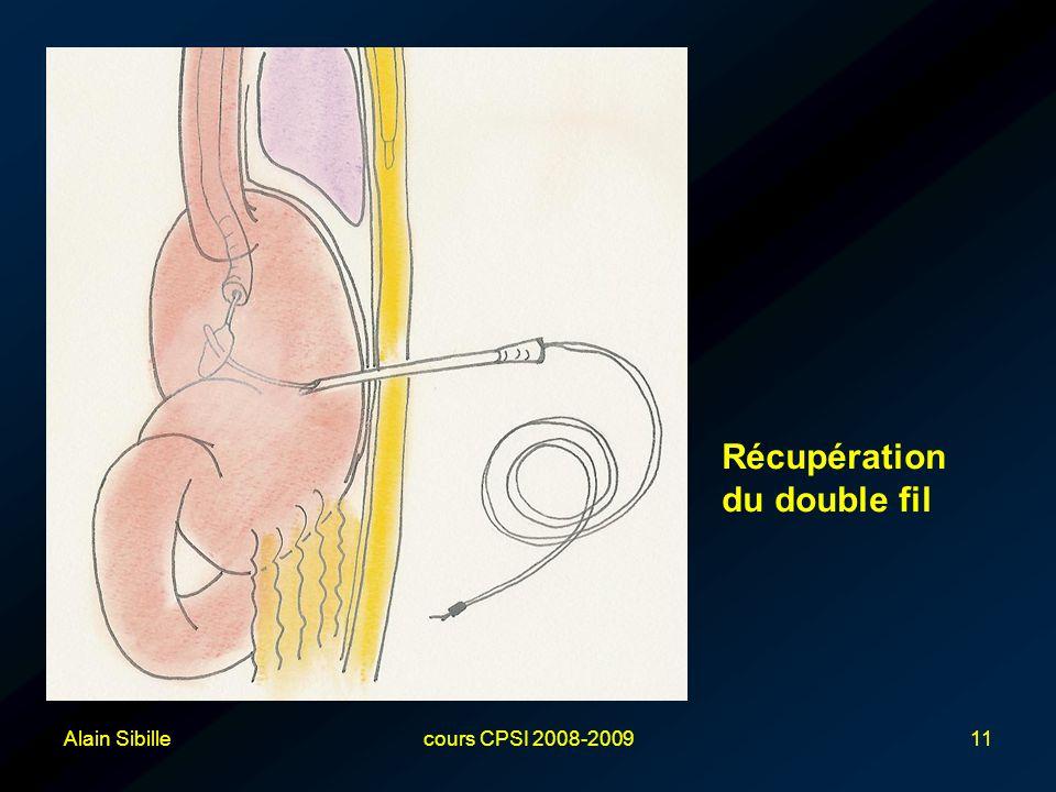 Alain Sibillecours CPSI 2008-200911 Récupération du double fil