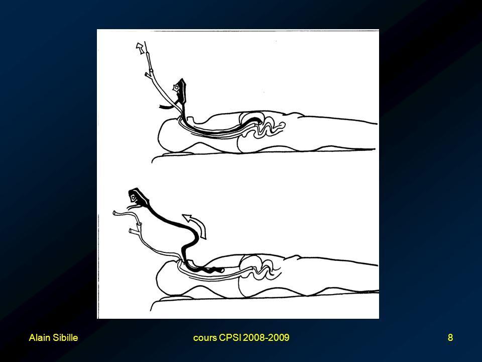 Alain Sibillecours CPSI 2008-200949 Métastase de cancer ORL ou oesophagien au site de gastrostomie –Littérature : uniquement des « case reports » 47 cas décrits de 1989 à 2006 Tous avec méthode « Pull » Plusieurs hypothèses physiopathologiques, mais le plus vraisemblable = « greffe » directe de cellules via la collerette interne