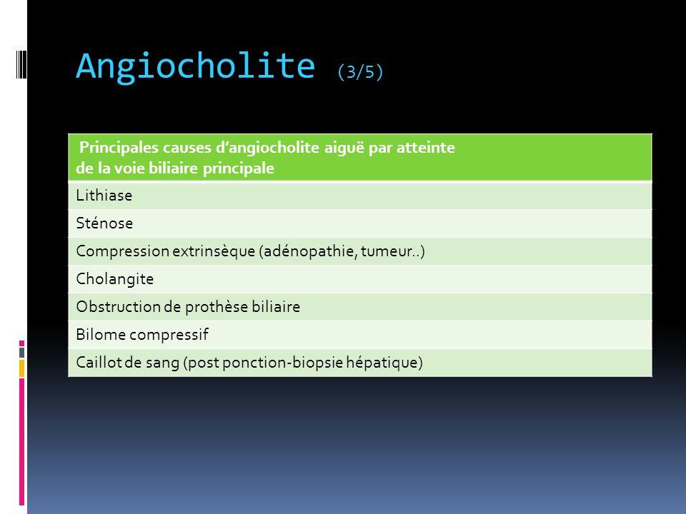 Angiocholite (3/5) Principales causes d'angiocholite aiguë par atteinte de la voie biliaire principale Lithiase Sténose Compression extrinsèque (adéno