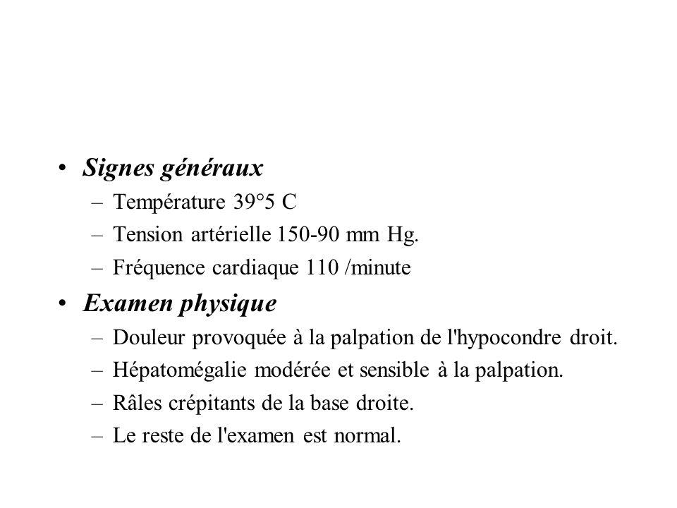 Signes généraux –Température 39°5 C –Tension artérielle 150-90 mm Hg. –Fréquence cardiaque 110 /minute Examen physique –Douleur provoquée à la palpati