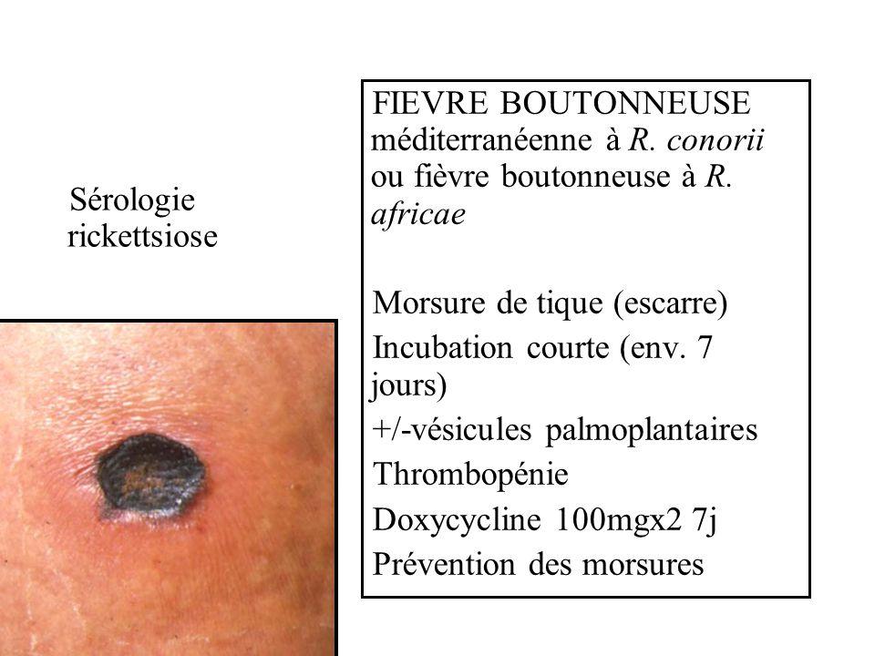 Sérologie rickettsiose FIEVRE BOUTONNEUSE méditerranéenne à R. conorii ou fièvre boutonneuse à R. africae Morsure de tique (escarre) Incubation courte