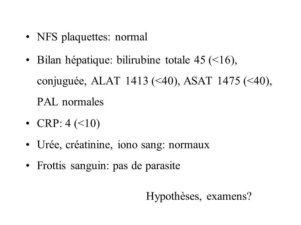 NFS plaquettes: normal Bilan hépatique: bilirubine totale 45 (<16), conjuguée, ALAT 1413 (<40), ASAT 1475 (<40), PAL normales CRP: 4 (<10) Urée, créat