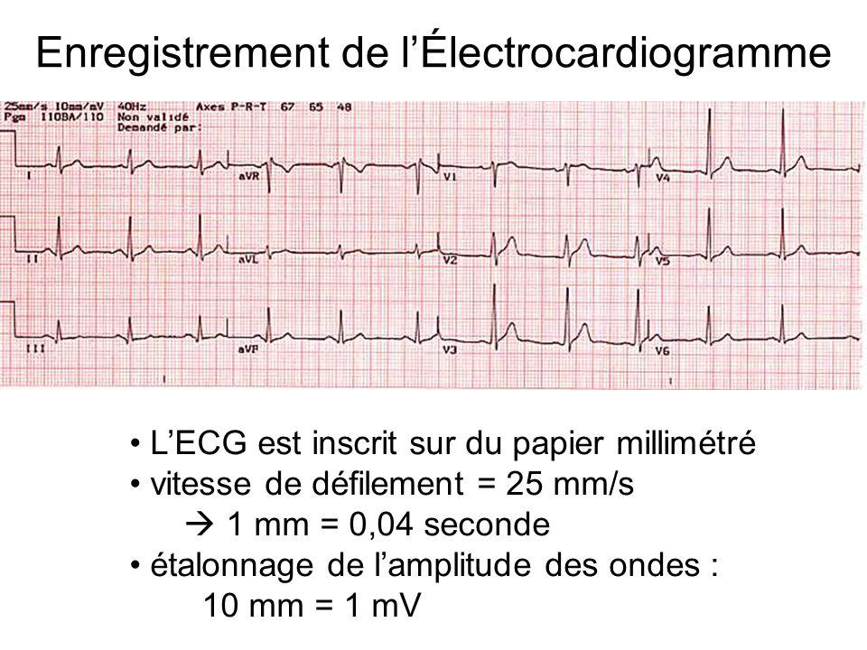 Enregistrement de l'Électrocardiogramme L'ECG est inscrit sur du papier millimétré vitesse de défilement = 25 mm/s  1 mm = 0,04 seconde étalonnage de l'amplitude des ondes : 10 mm = 1 mV