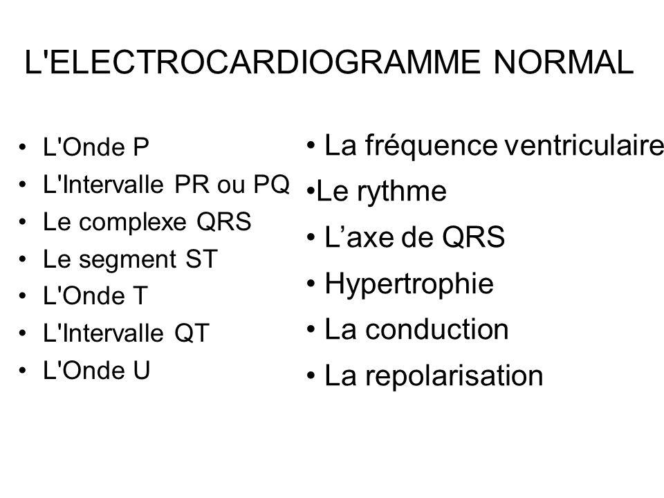L Onde P L Intervalle PR ou PQ Le complexe QRS Le segment ST L Onde T L Intervalle QT L Onde U L ELECTROCARDIOGRAMME NORMAL La fréquence ventriculaire Le rythme L'axe de QRS Hypertrophie La conduction La repolarisation