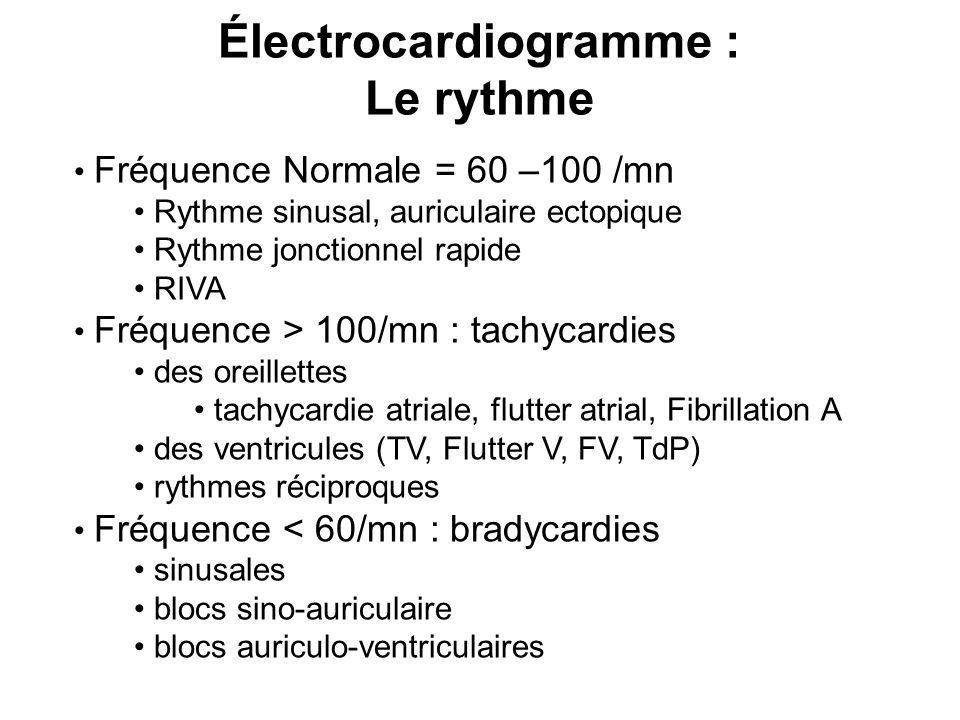 Électrocardiogramme : Le rythme Fréquence Normale = 60 –100 /mn Rythme sinusal, auriculaire ectopique Rythme jonctionnel rapide RIVA Fréquence > 100/mn : tachycardies des oreillettes tachycardie atriale, flutter atrial, Fibrillation A des ventricules (TV, Flutter V, FV, TdP) rythmes réciproques Fréquence < 60/mn : bradycardies sinusales blocs sino-auriculaire blocs auriculo-ventriculaires