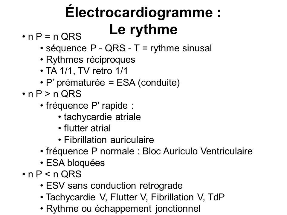 Électrocardiogramme : Le rythme n P = n QRS séquence P - QRS - T = rythme sinusal Rythmes réciproques TA 1/1, TV retro 1/1 P' prématurée = ESA (conduite) n P > n QRS fréquence P' rapide : tachycardie atriale flutter atrial Fibrillation auriculaire fréquence P normale : Bloc Auriculo Ventriculaire ESA bloquées n P < n QRS ESV sans conduction retrograde Tachycardie V, Flutter V, Fibrillation V, TdP Rythme ou échappement jonctionnel