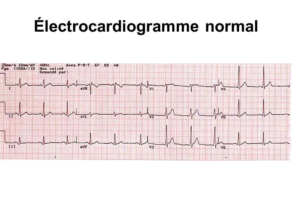 Le complexe QRS = dépolarisation ventriculaire se traduit par un complexe polyphasique L onde négative initiale est appelée onde Q : –sa durée est généralement inférieure à 0,04 seconde et son amplitude dépasse rarement 1 à 2 mm.