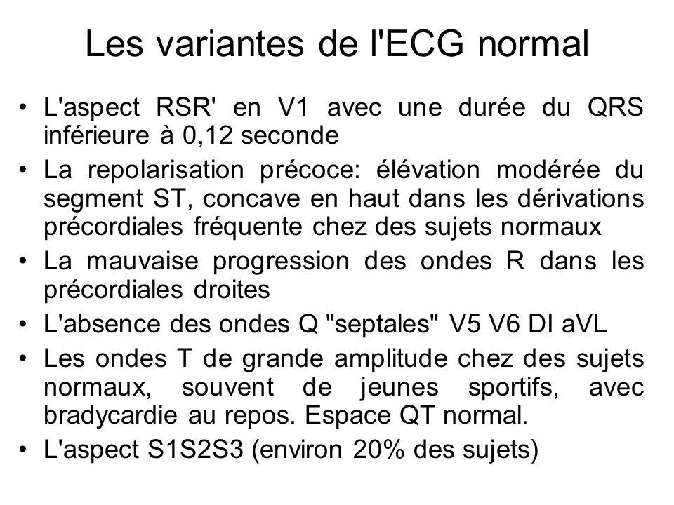 Les variantes de l ECG normal L aspect RSR en V1 avec une durée du QRS inférieure à 0,12 seconde La repolarisation précoce: élévation modérée du segment ST, concave en haut dans les dérivations précordiales fréquente chez des sujets normaux La mauvaise progression des ondes R dans les précordiales droites L absence des ondes Q septales V5 V6 DI aVL Les ondes T de grande amplitude chez des sujets normaux, souvent de jeunes sportifs, avec bradycardie au repos.