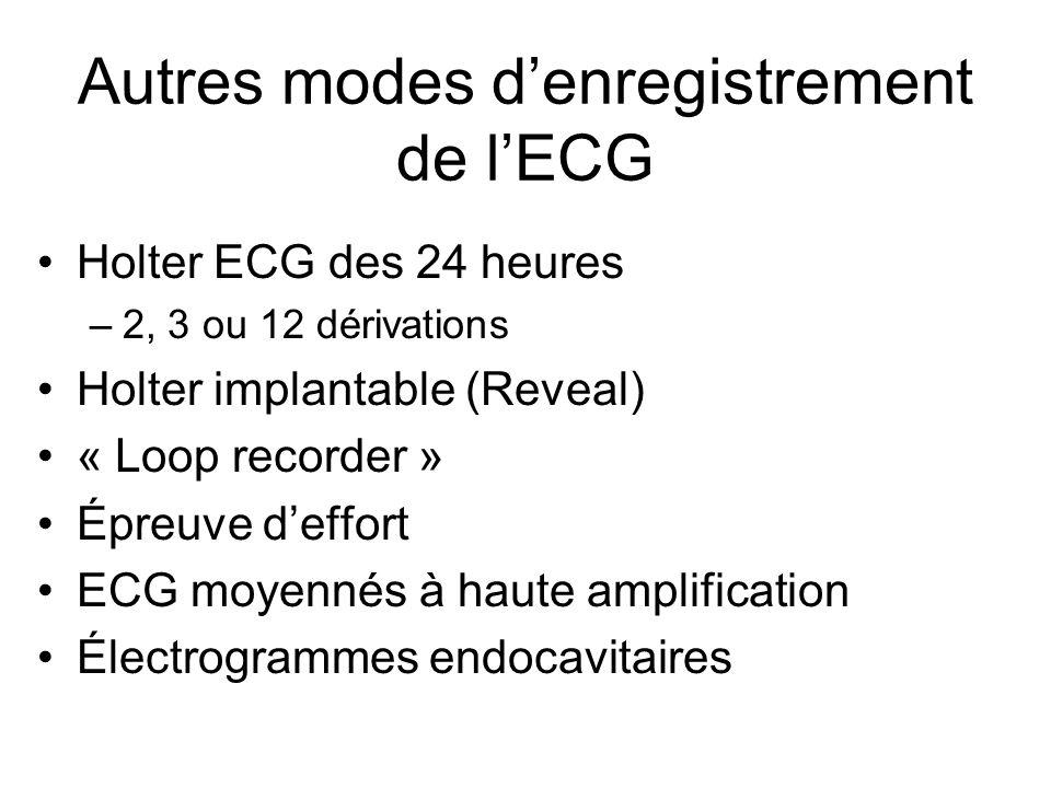 Autres modes d'enregistrement de l'ECG Holter ECG des 24 heures –2, 3 ou 12 dérivations Holter implantable (Reveal) « Loop recorder » Épreuve d'effort ECG moyennés à haute amplification Électrogrammes endocavitaires