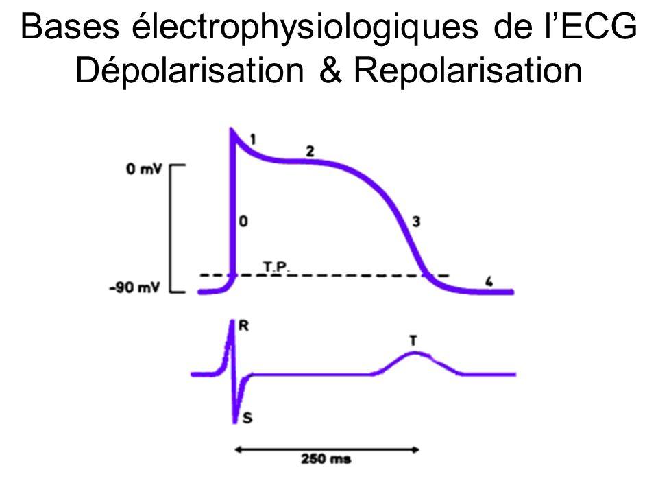 Bases électrophysiologiques de l'ECG Dépolarisation Si une électrode voit venir la dépolarisation, l'enregistreur inscrit une onde positive ; si elle voit fuir la dépolarisation, l'onde négative ; si l'électrode voit « passer » le front de dépolarisation, l'onde est d'abord positive puis s'inverse après le passage de la dépolarisation pour devenir négative (onde diphasique).