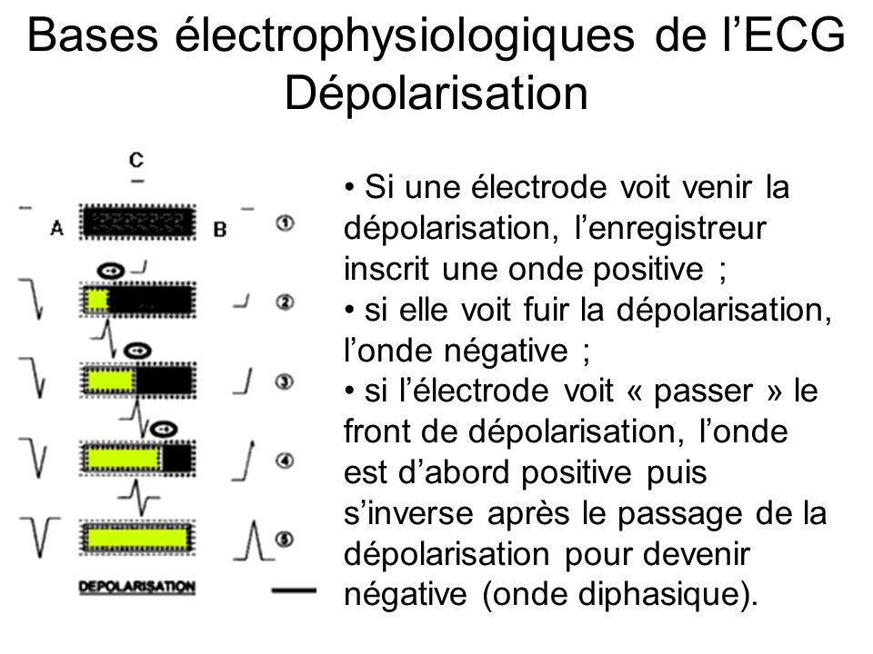 Bases électrophysiologiques de l'ECG Dépolarisation Si une électrode voit venir la dépolarisation, l'enregistreur inscrit une onde positive ; si elle