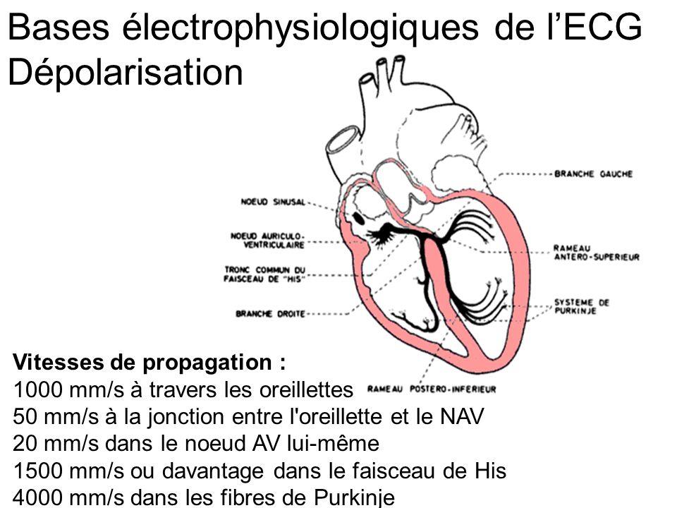 Vitesses de propagation : 1000 mm/s à travers les oreillettes 50 mm/s à la jonction entre l oreillette et le NAV 20 mm/s dans le noeud AV lui-même 1500 mm/s ou davantage dans le faisceau de His 4000 mm/s dans les fibres de Purkinje Bases électrophysiologiques de l'ECG Dépolarisation