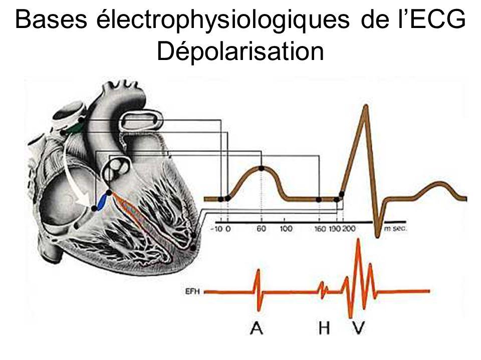 L Onde U déflexion positive de faible amplitude qui est parfois observée après l onde T signification exacte discutée possible chez les jeunes sujets normaux hypertrophie ventriculaire bradycardie importante troubles ioniques L amplitude de l onde U peut atteindre 0,2 mV (2 mm) dans les dérivations V2 et V3.