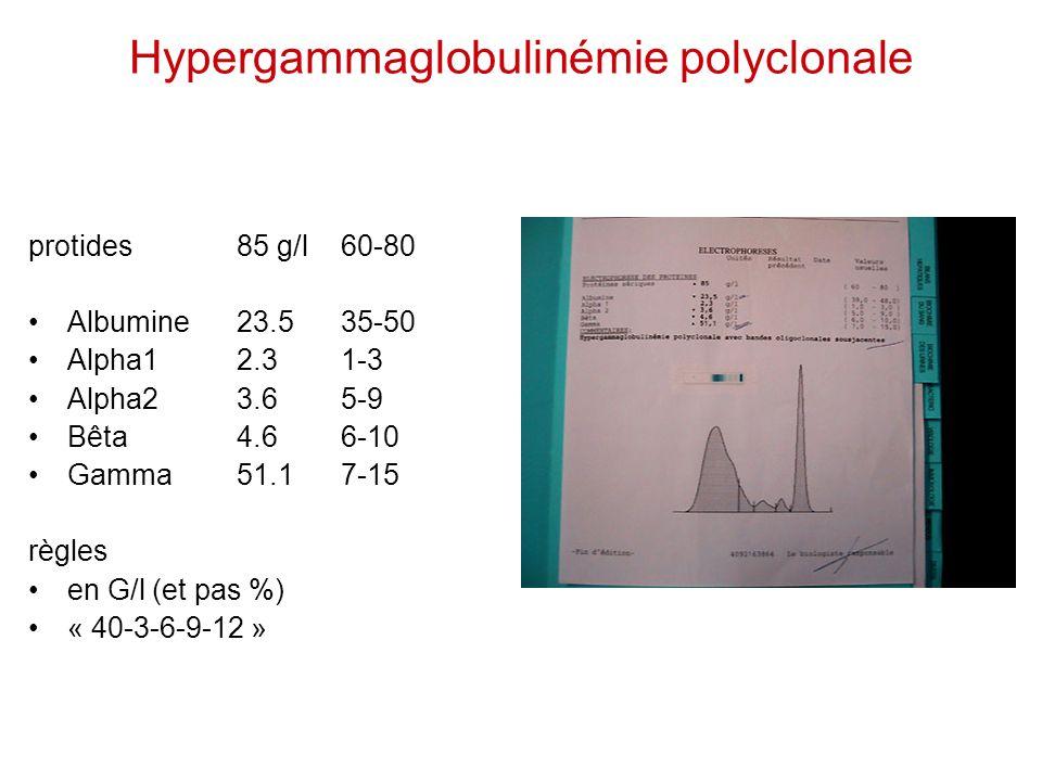Hypergammaglobulinémie polyclonale protides85 g/l60-80 Albumine23.5 35-50 Alpha12.3 1-3 Alpha23.6 5-9 Bêta 4.66-10 Gamma51.17-15 règles en G/l (et pas