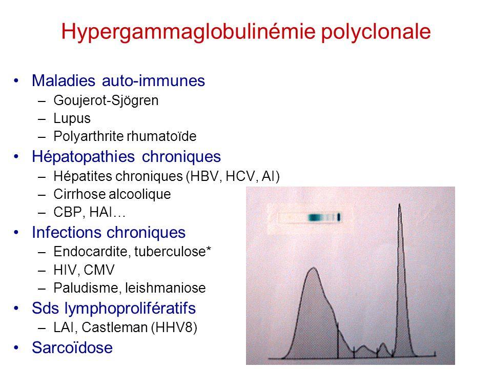 Hypergammaglobulinémie polyclonale Maladies auto-immunes –Goujerot-Sjögren –Lupus –Polyarthrite rhumatoïde Hépatopathies chroniques –Hépatites chroniq