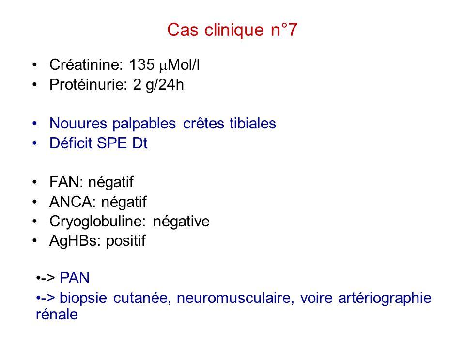 Cas clinique n°7 Créatinine: 135  Mol/l Protéinurie: 2 g/24h Nouures palpables crêtes tibiales Déficit SPE Dt FAN: négatif ANCA: négatif Cryoglobulin