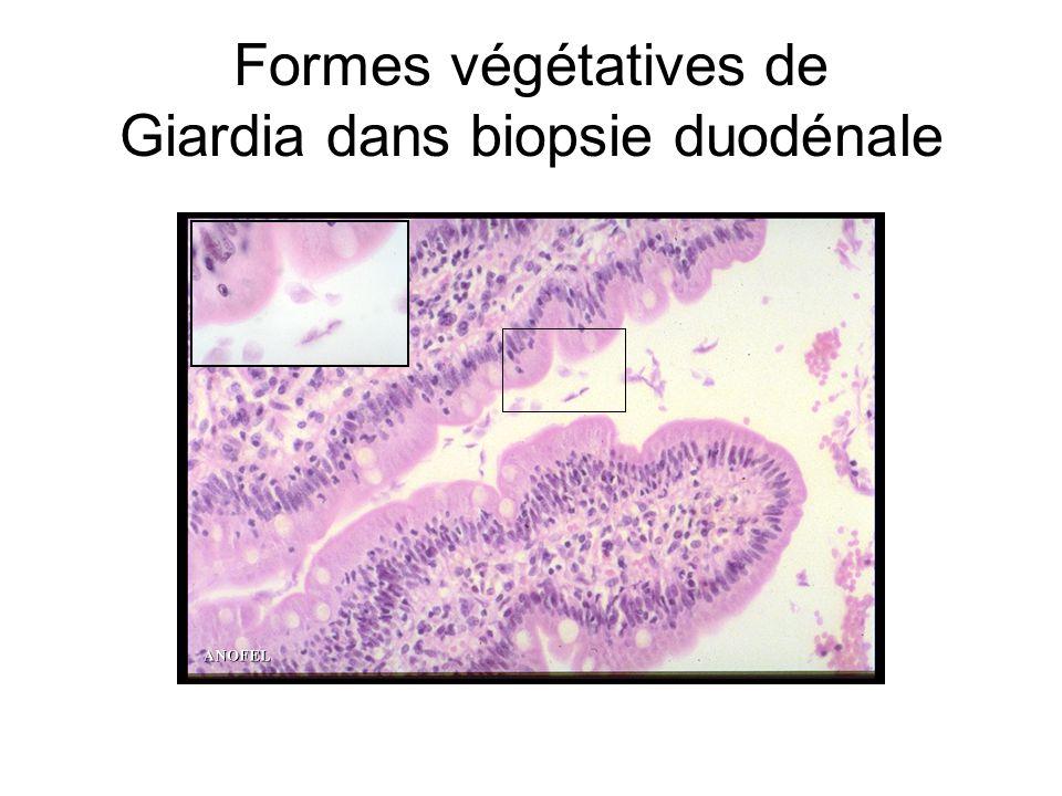 Formes végétatives de Giardia dans biopsie duodénale