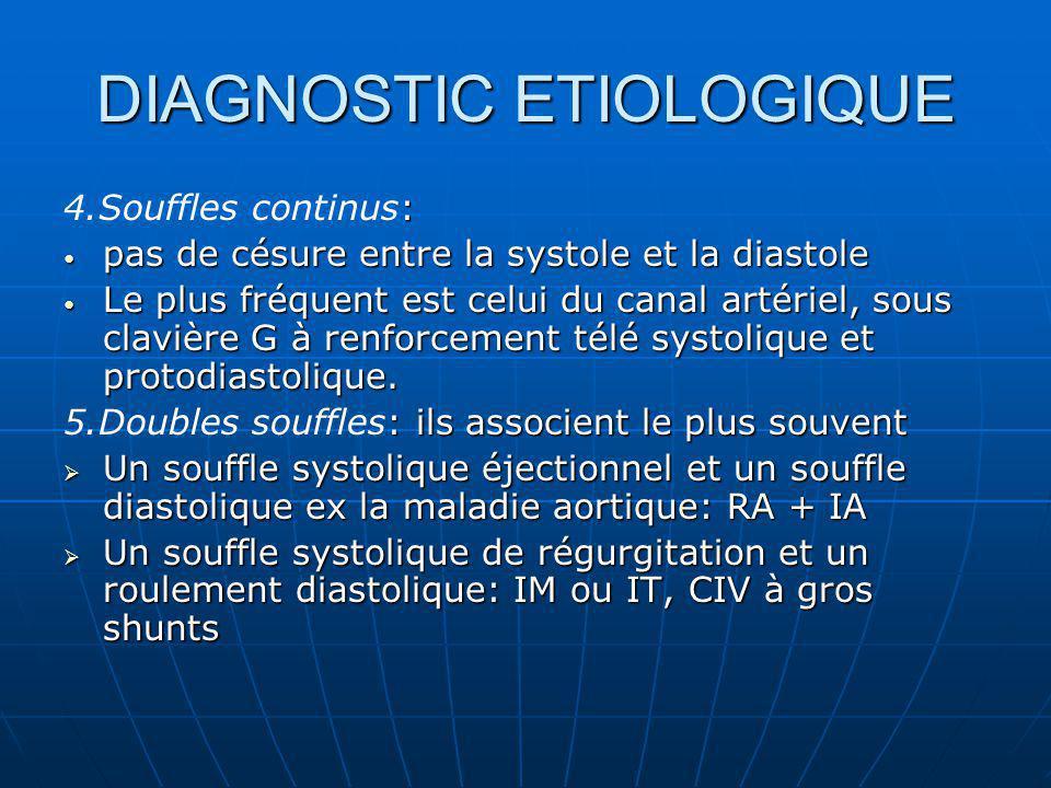 DIAGNOSTIC ETIOLOGIQUE : 4.Souffles continus: pas de césure entre la systole et la diastole pas de césure entre la systole et la diastole Le plus fréq