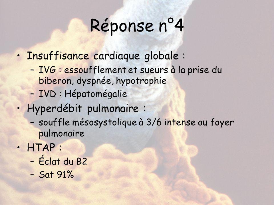 Réponse n°4 Insuffisance cardiaque globale : –IVG : essoufflement et sueurs à la prise du biberon, dyspnée, hypotrophie –IVD : Hépatomégalie Hyperdébi