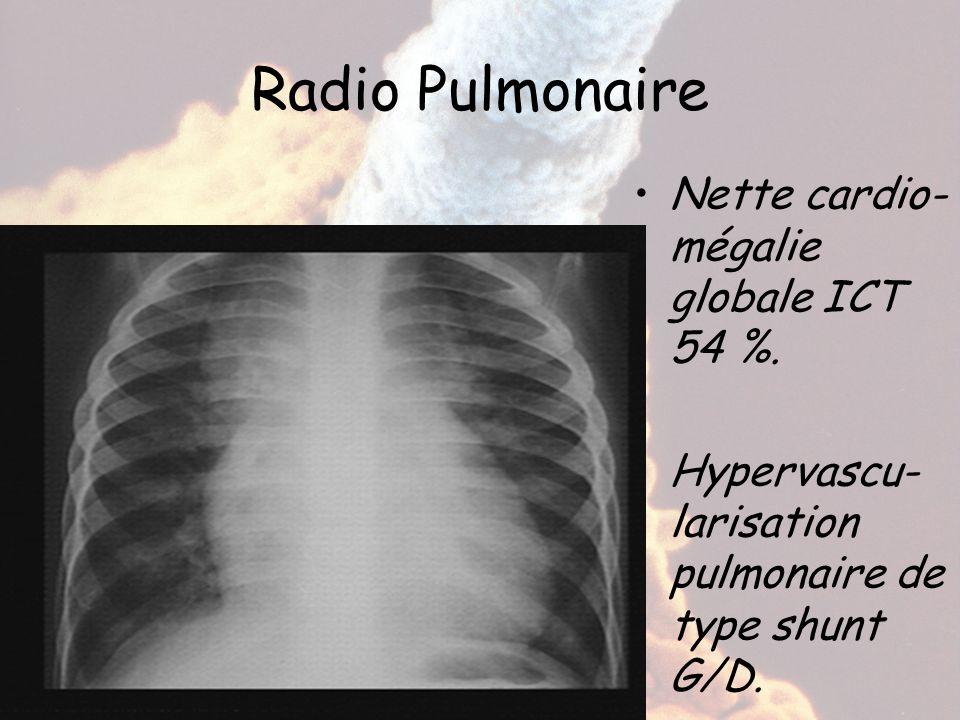 Radio Pulmonaire Nette cardio- mégalie globale ICT 54 %. Hypervascu- larisation pulmonaire de type shunt G/D.