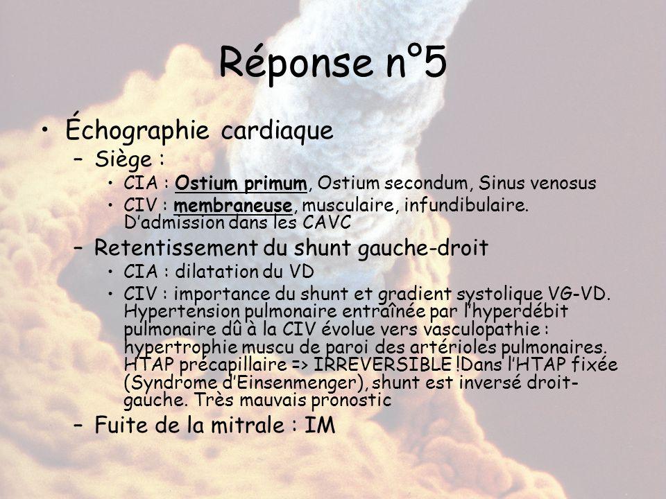 Réponse n°5 Échographie cardiaque –Siège : CIA : Ostium primum, Ostium secondum, Sinus venosus CIV : membraneuse, musculaire, infundibulaire. D'admiss
