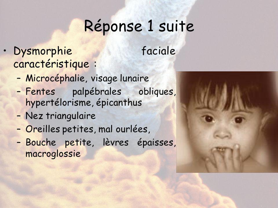 Réponse 1 suite Dysmorphie faciale caractéristique : –Microcéphalie, visage lunaire –Fentes palpébrales obliques, hypertélorisme, épicanthus –Nez tria