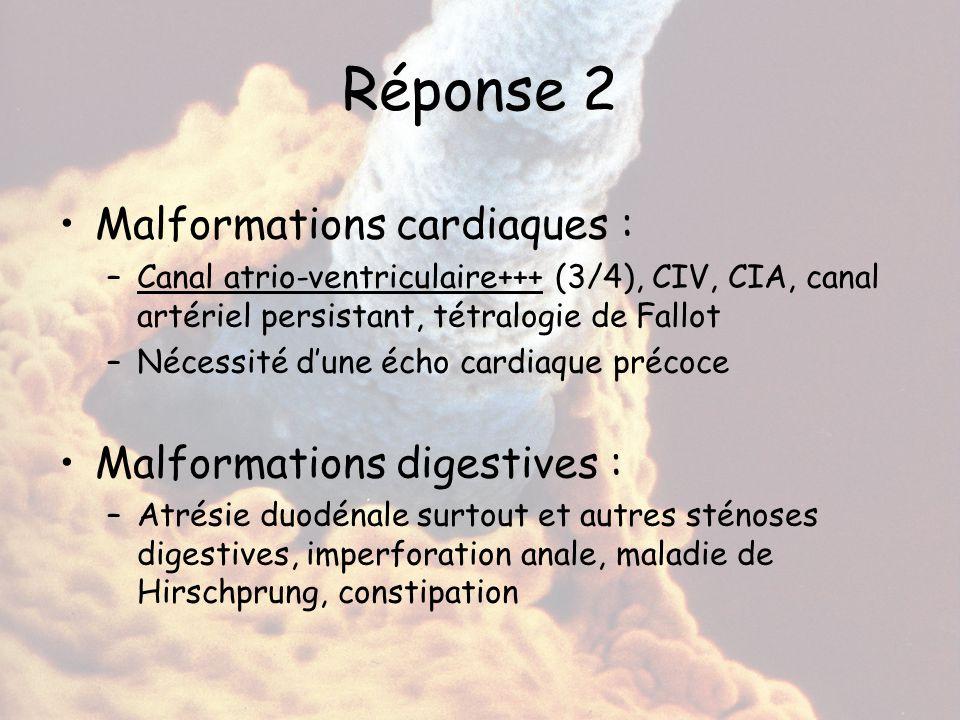 Réponse 2 Malformations cardiaques : –Canal atrio-ventriculaire+++ (3/4), CIV, CIA, canal artériel persistant, tétralogie de Fallot –Nécessité d'une é