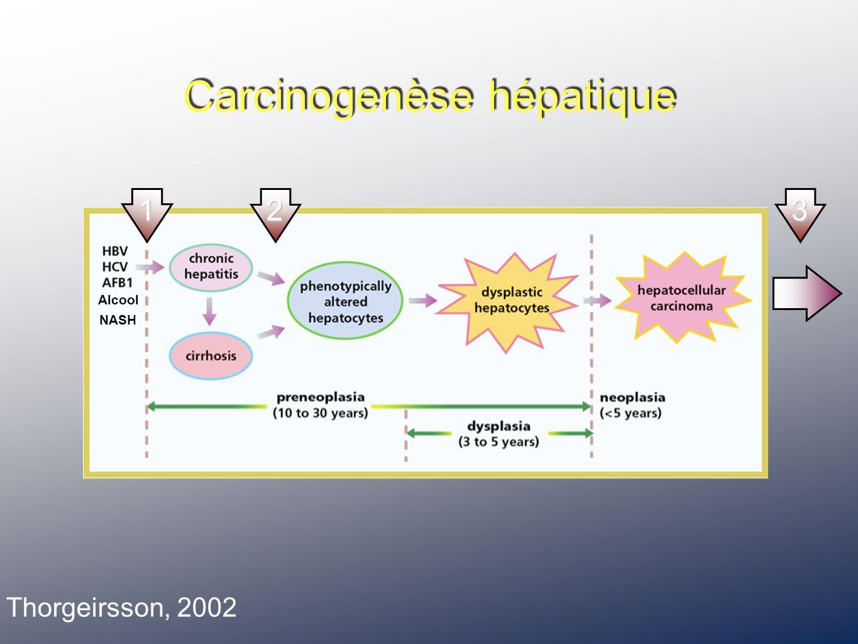 Alcool NASH Carcinogenèse hépatique Thorgeirsson, 2002 123